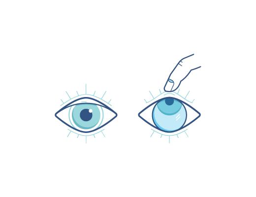 Œil qui regarde vers le haut avec un doigt qui retire la lentille sur l'œil