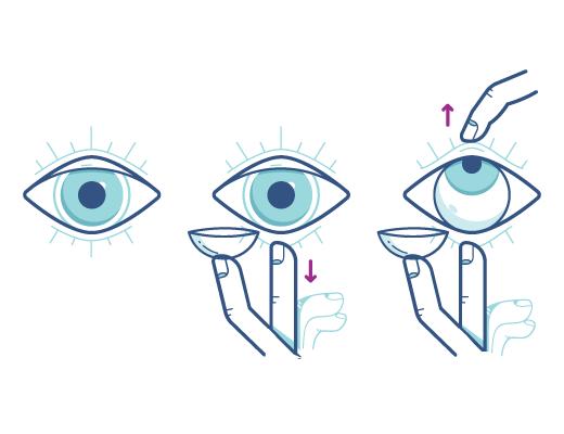 Suivez cette technique avec œil ouvert pour insérer vos lentilles cornéennes