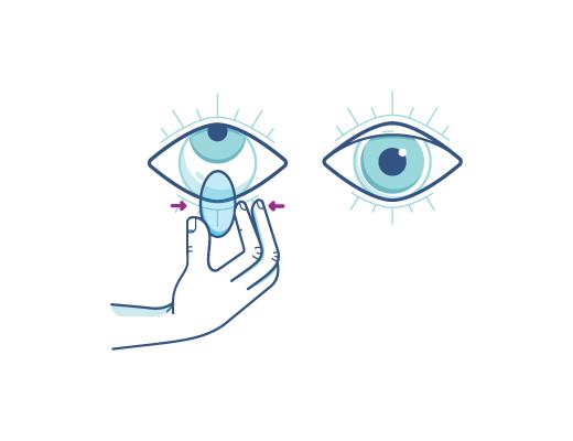 Pincez délicatement la lentille pour l'enlever