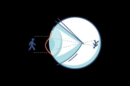 Illustration d'une cornée irrégulière.