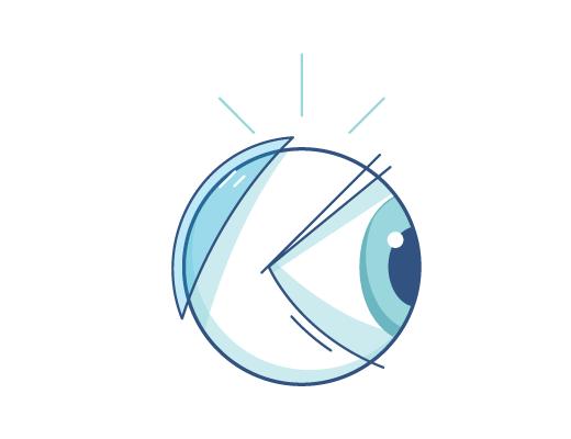 Lentille derrière l'œil